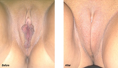 Labiaplasty-Before-and-After-New-Jersey-3